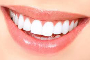 teeth whitening west orange